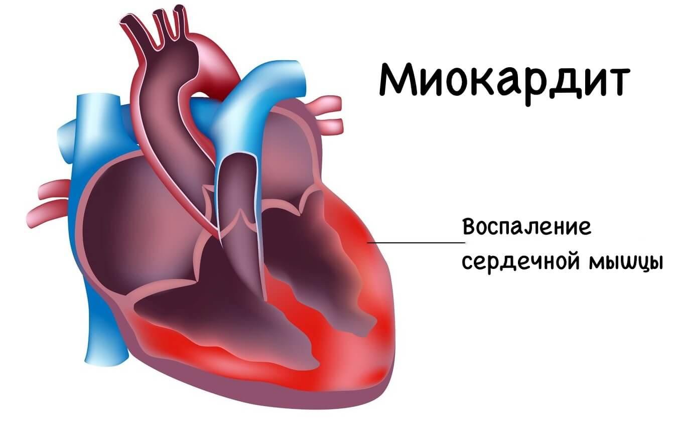 Диагностика миокардита у взрослых