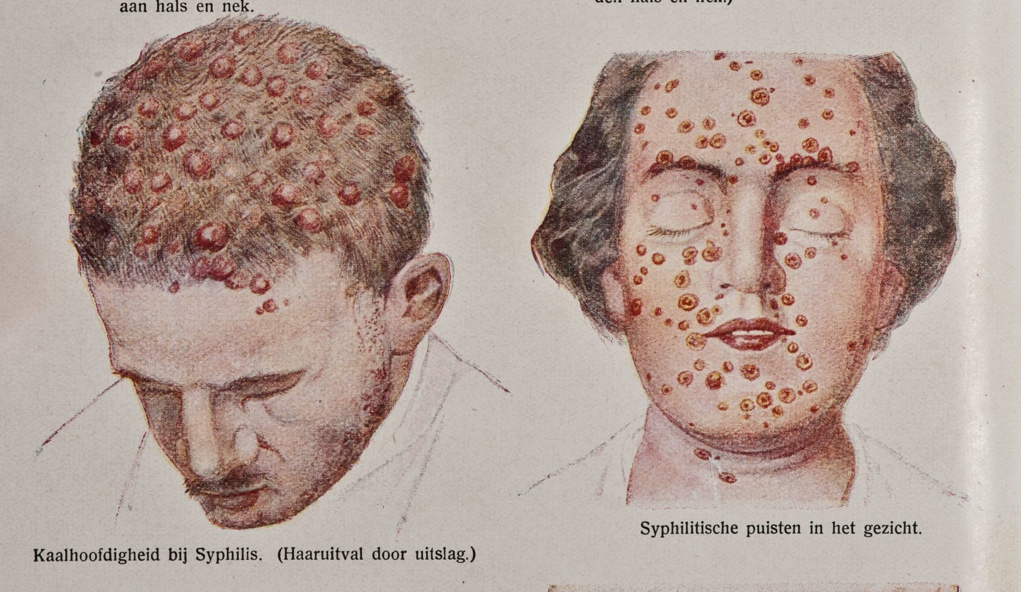 Симптомы сифилиса у женщин