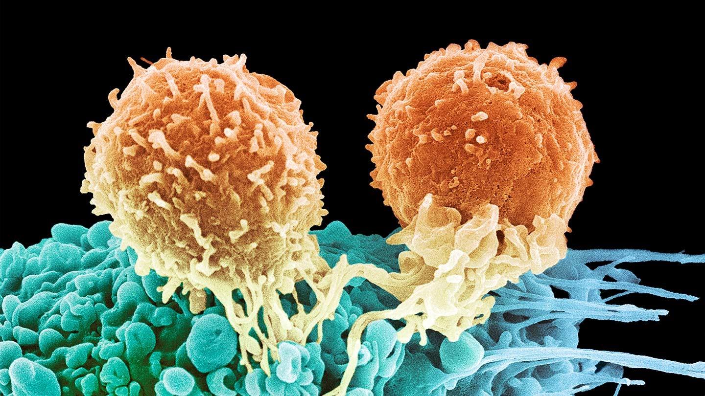 Как лечится лимфома Ходжкина и симптомы неходжкинского B-клеточного синдрома