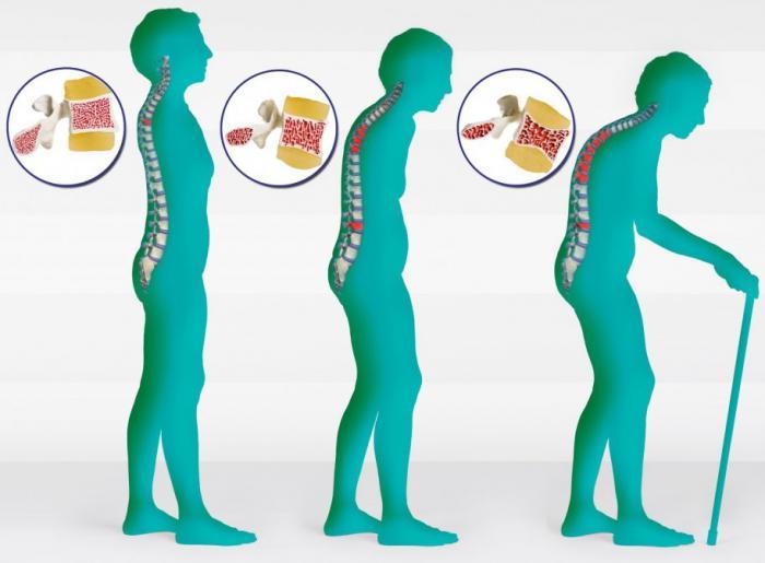 Хондропротекторы для суставов — мнения врачей и отзывы пациентов