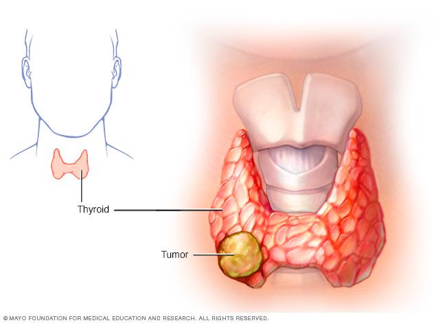 Рак щитовидной железы: симптомы у женщин, признаки рака щитовидки, папиллярная карцинома щитовидной железы