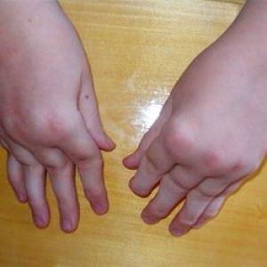 Ювенильный ревматоидный артрит у детей лечение причины симптомы болезни