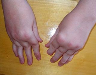 полиартрит суставов ревматоидный артрит