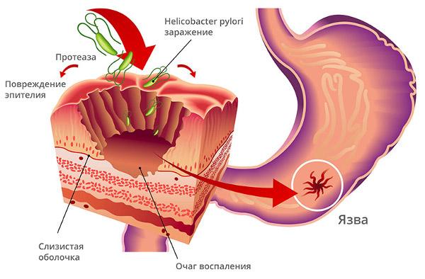 Как лечить эрозию желудка поджелудочной железы