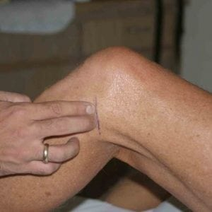 Смещение мениска коленного сустава лечение