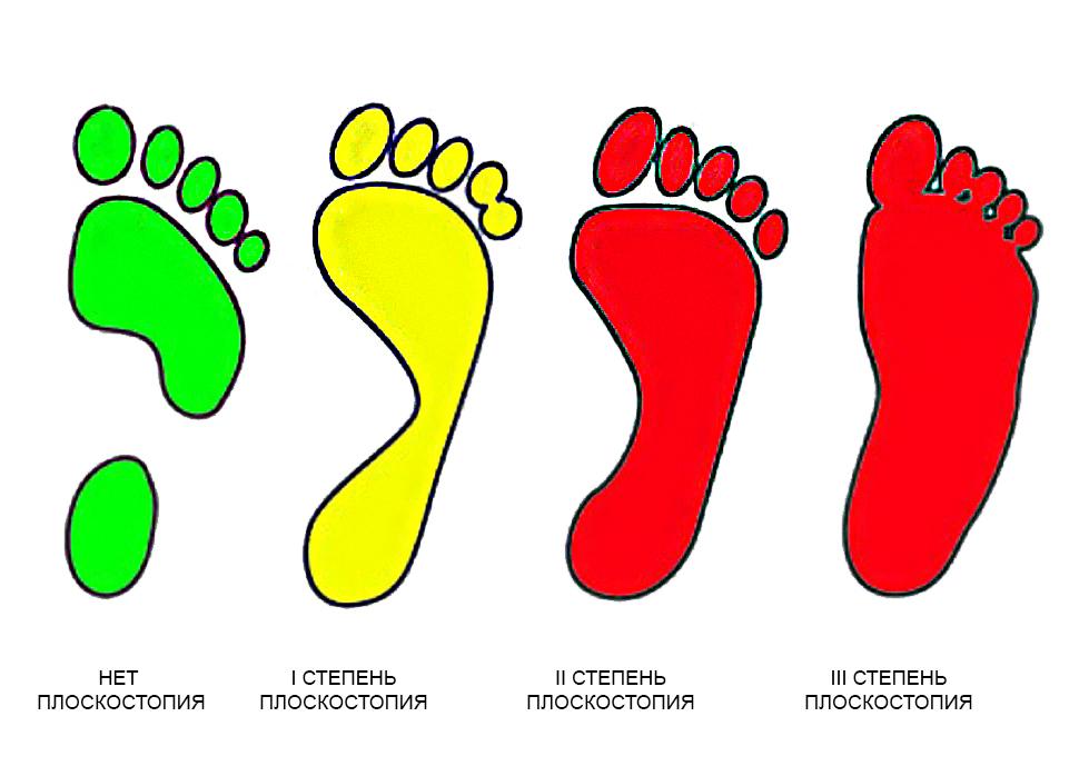 Плоскостопие у детей: профилактика, лечение, причины, симптомы, признаки, фото