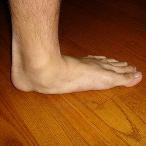 Причины появления плоскостопия