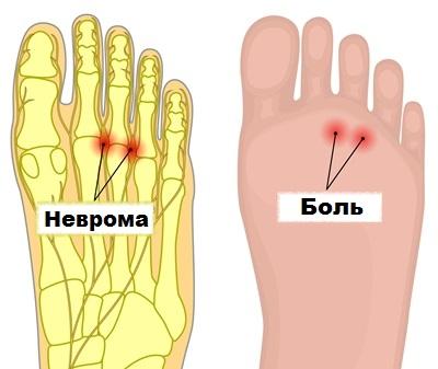 Пульсирующая боль сустав большого пальца на ноге