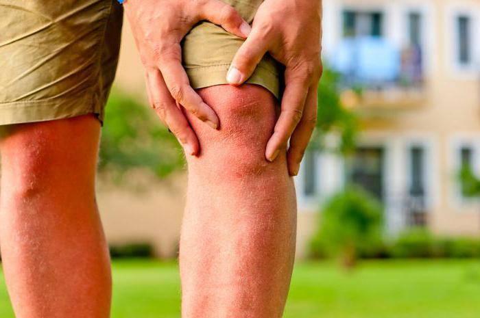 Что такое остеофиты и как с ними бороться
