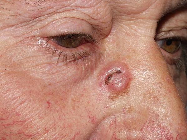 Рак кожи базалиома прогноз