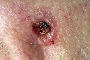 Базально клеточный рак лечение