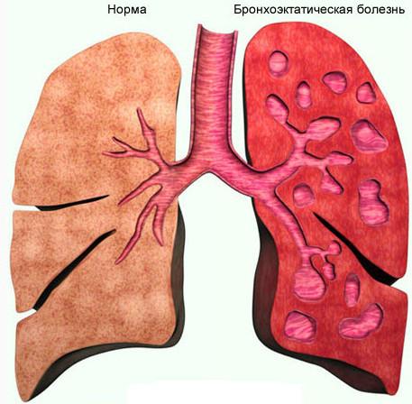 Бронхоэктазы легких: что это, причины, симптомы, лечение