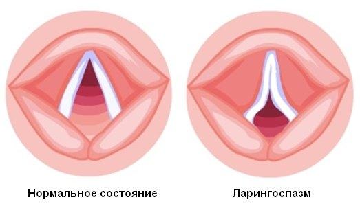 Как снять спазм горла в домашних условиях
