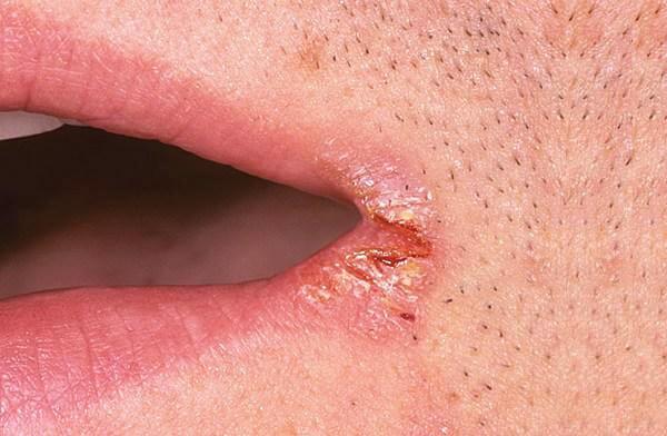 Атрофический кандидоз слизистой полости рта