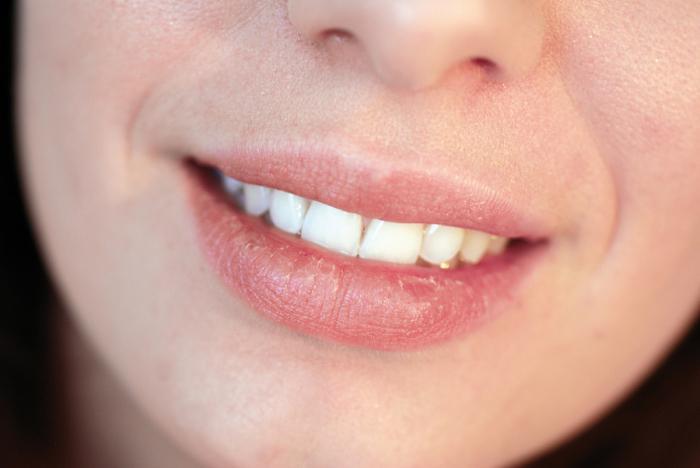 Как лечить хейлит на губах: чем вылечить, лекарства, народные средства