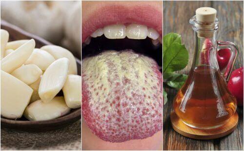 Кандидозы слизистой оболочки полости рта народные средства