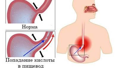 Боль в грудной клетке посередине и тяжело дышать, причины затрудненного дыхания