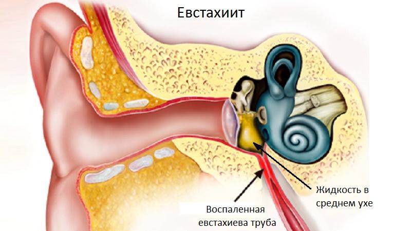 Как вылечить евстахиит