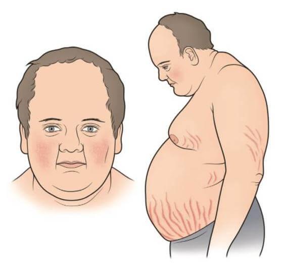 Синдром Иценко-Кушинга: симптомы, признаки и лечение