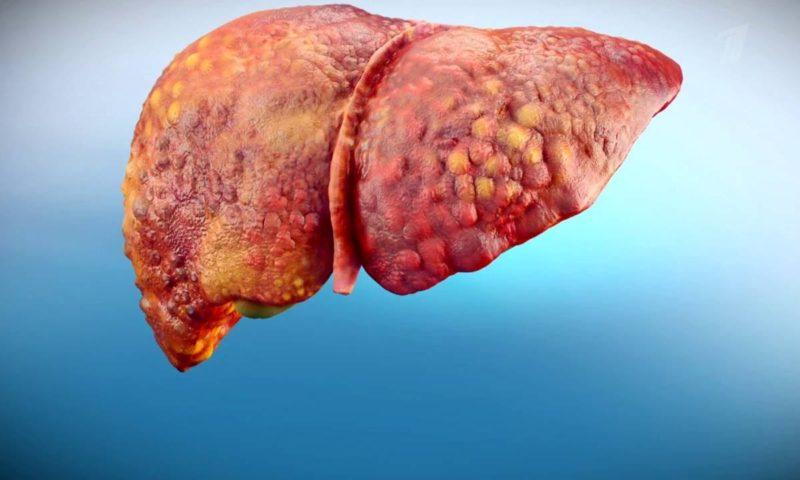 Фиброз печени 3 степени сколько живут — Все о печени