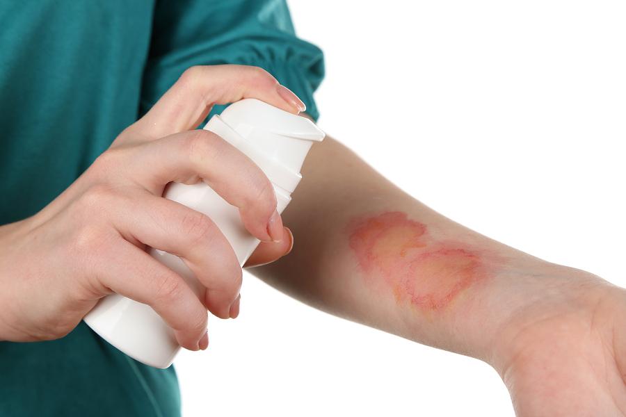 Как облегчить боль при ожоге кипятком