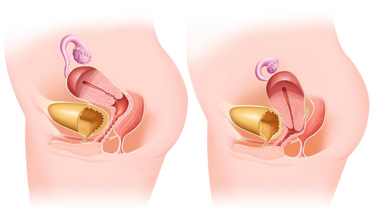 Опущение органов малого таза у женщин: симптомы и лечение