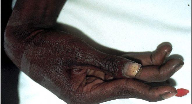Фото симптомов столбняка.