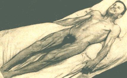 Столбняк симптомы у человека после пореза 9