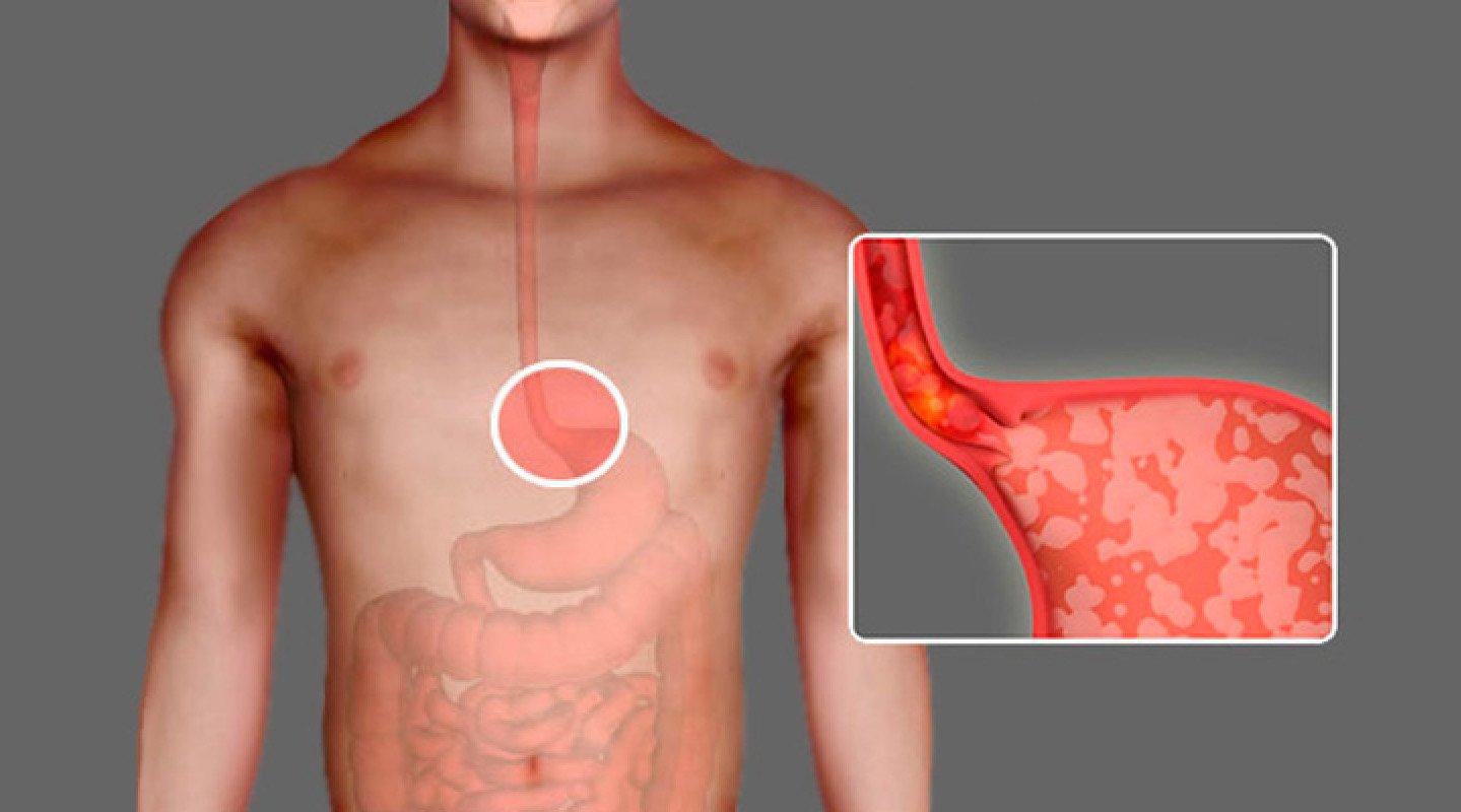 Ахалазия кардии пищевода симптомы и лечение