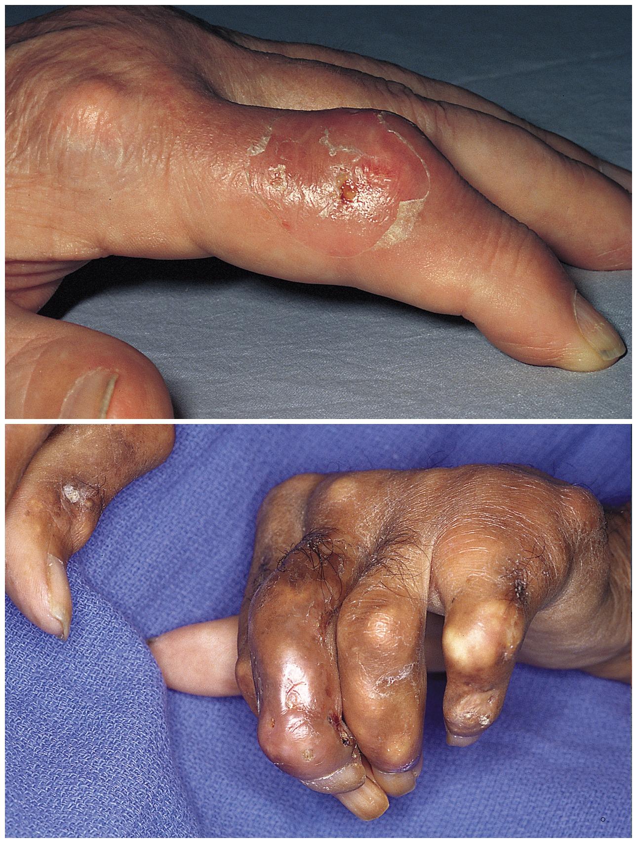 Инфекционный артрит симптомы и лечение