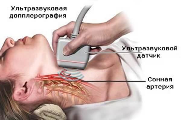 УЗДГ сосудов головы и шеи (ультразвуковая допплерография): что это такое