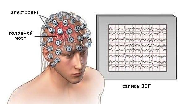 ЭЭГ головного мозга: что это такое и что показывает электроэнцефалограмма