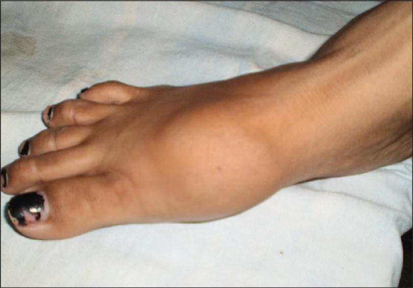 Саркома ноги симптомы фото