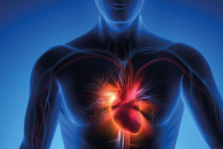 Инфаркт симптомы у женщин последствия