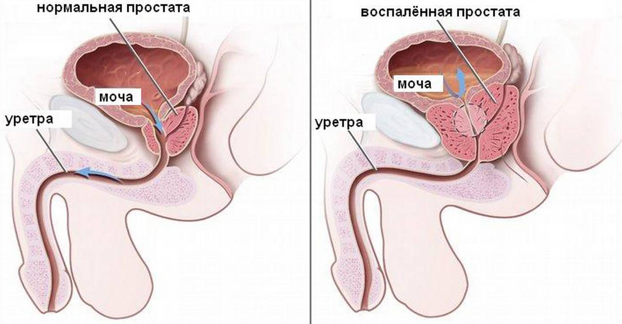 Признаки воспаления предстательной железы у мужчин