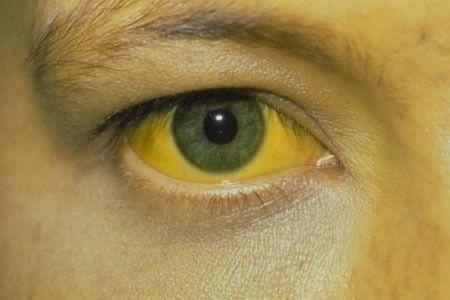 Рак желчного пузыря: признаки, симптомы, лечение, прогноз для жизни