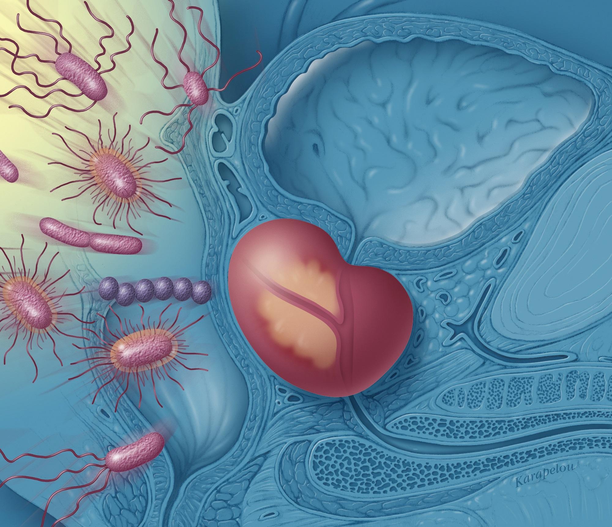 Цитомегаловирусный простатит эффективный препарат простатита