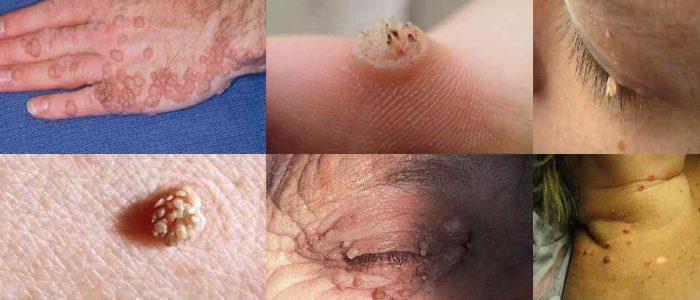 Признаки ВПЧ-инфекции