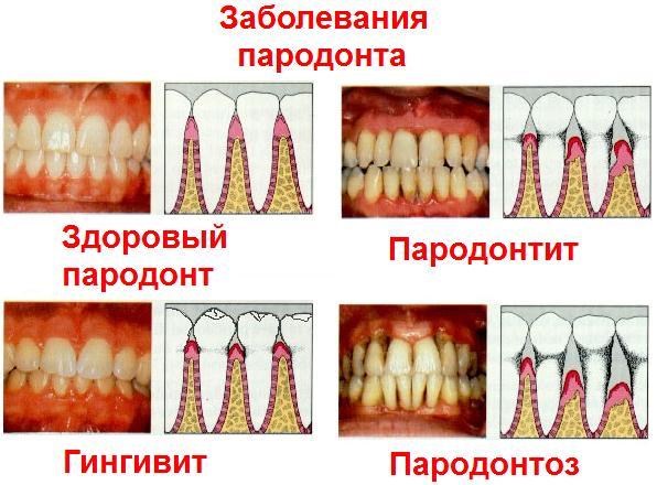 Пародонтоз признаки и лечение фото