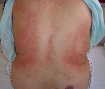 Тромбоцитопения: причины, симптомы и лечение