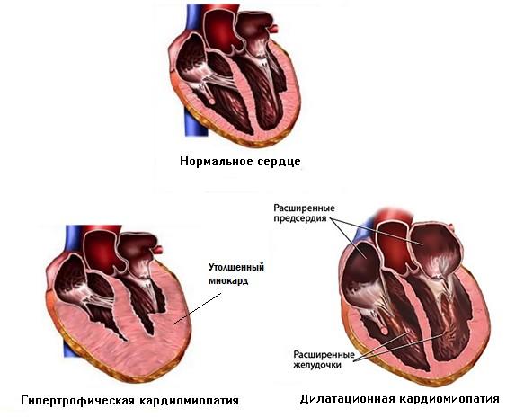 Миокардиопатия симптомы