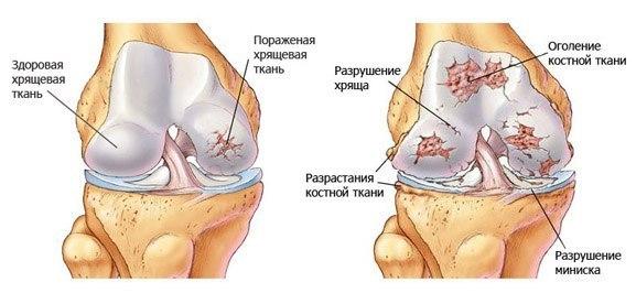 Остеоартроз симптоматика причины лечение профилактика