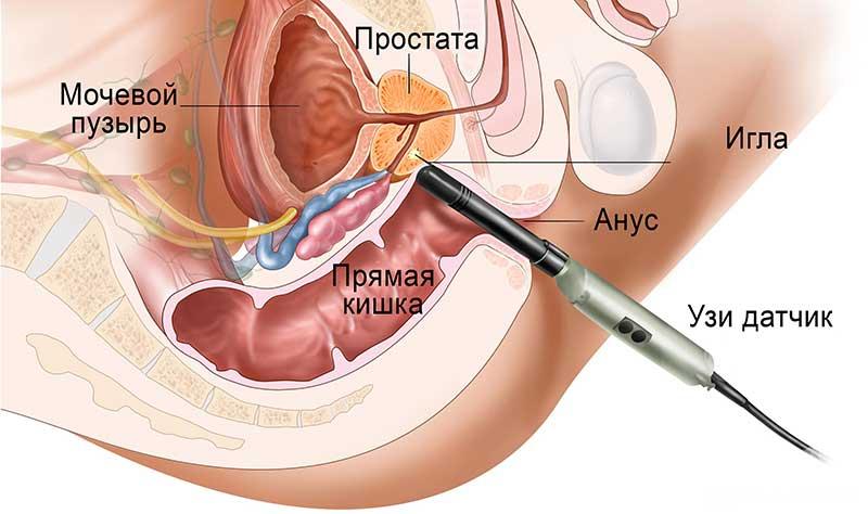 Как делают биопсию простаты - Всё об урологии