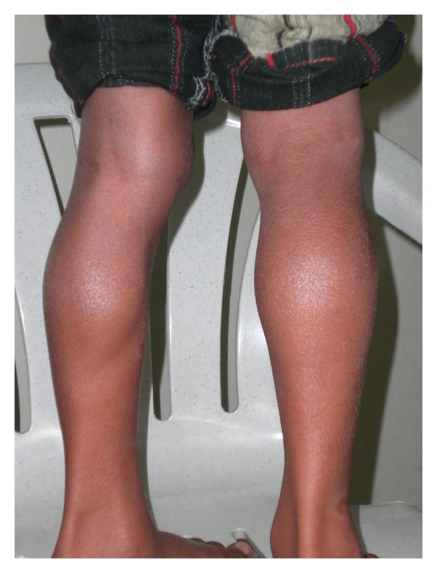 Миопатия дюшенна что это такое симптомы