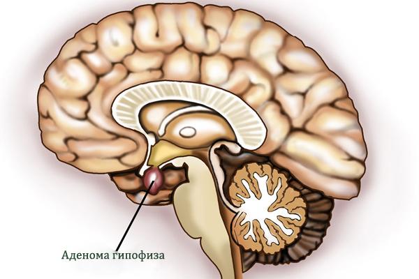 Пролактинома гипофиза: симптомы у женщин, лечение и прогноз