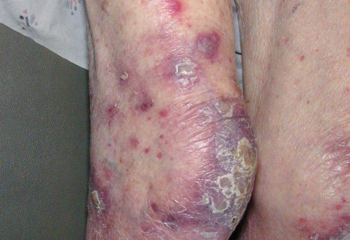 Признаки лейкемии
