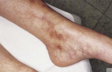 Антифосфолипидный синдром (АФС): причины, симптомы и методы лечения