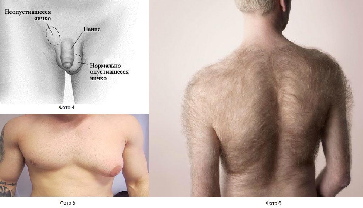 Рак яичек: диагностика рака мошонки у мужчин, симптомы рака яичка, опухоль желточного мешка, прогноз