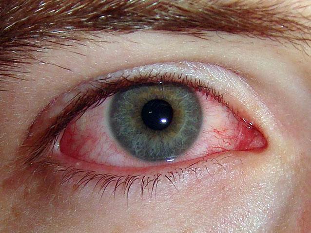 Аллергия на глазах симптомы и лечение