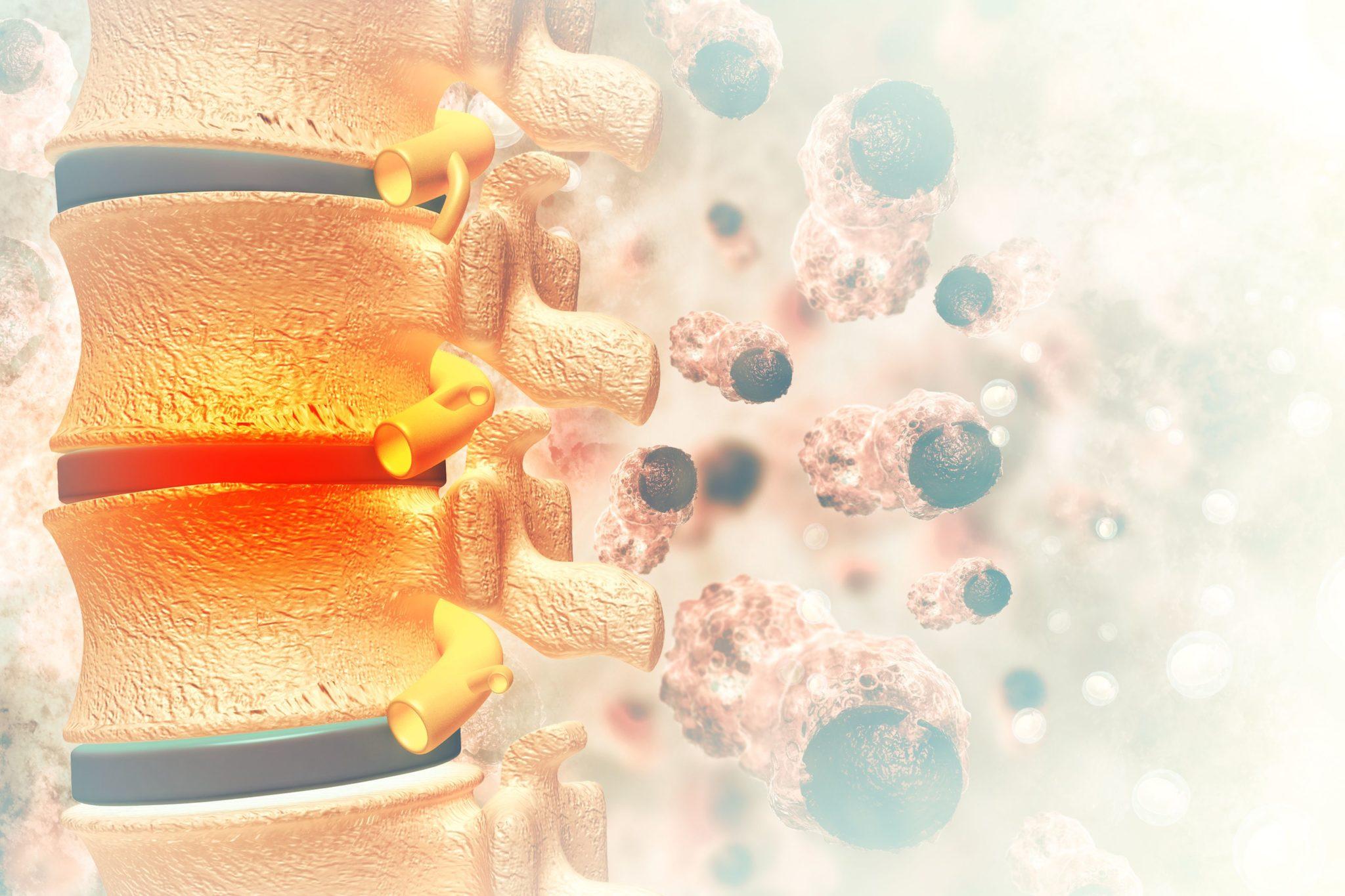 Рак позвоночника – первые симптомы